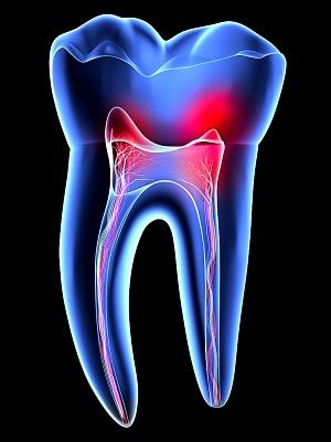 Dente raio x