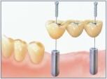 Implante dentário 3